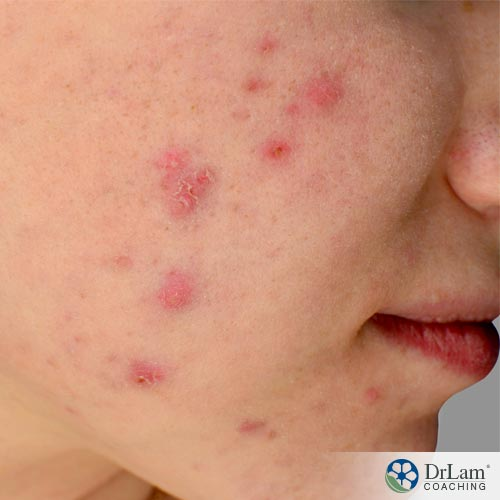1-inst-natural-acne-solutions-36374